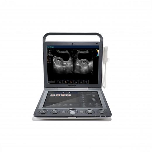 S9 - Échographe portable couleur SonoScape