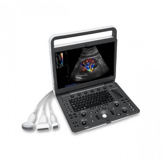E2 - Portable Doppler Couleur SonoScape