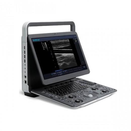 E1 - Portable Noir et Blanc SonoScape